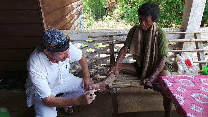 Hubert Kastner behandelt eine Wunde mit Silberwasser.